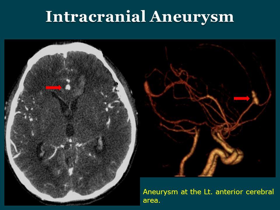 Intracranial Aneurysm Aneurysm at the Lt. anterior cerebral area.