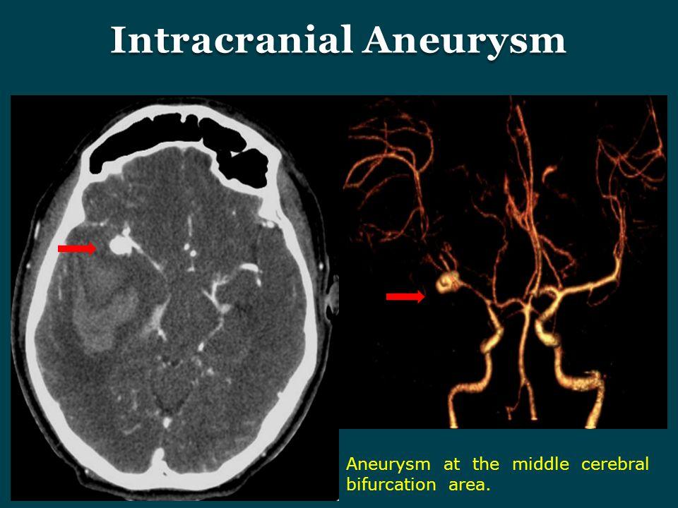 Intracranial Aneurysm Aneurysm at the middle cerebral bifurcation area.