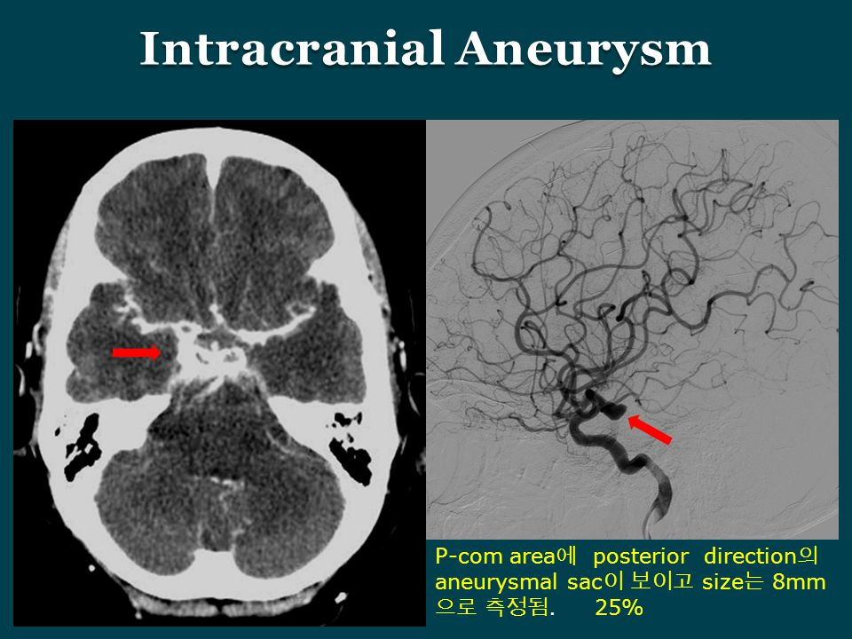 Intracranial Aneurysm P-com area 에 posterior direction 의 aneurysmal sac 이 보이고 size 는 8mm 으로 측정됨. 25%