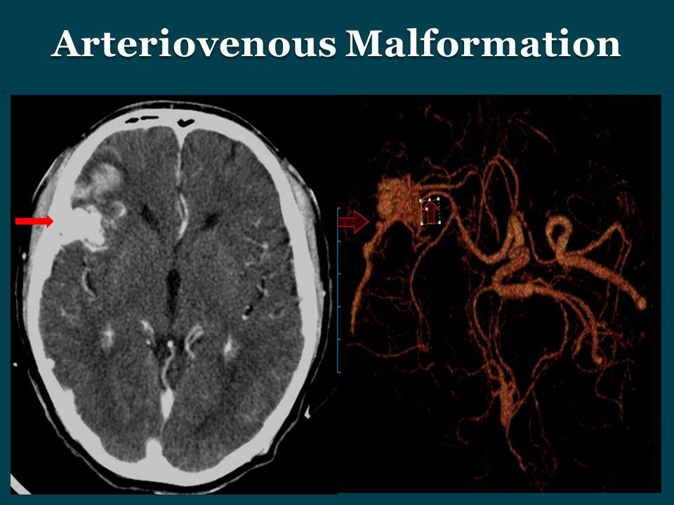 Arteriovenous Malformation