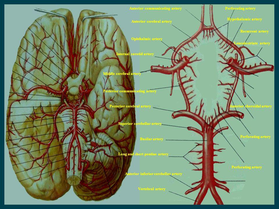 Anterior communicating artery Anterior cerebral artery Ophthalmic artery Internal carotid artery Middle cerebral artery Perforating artery Anterior ch