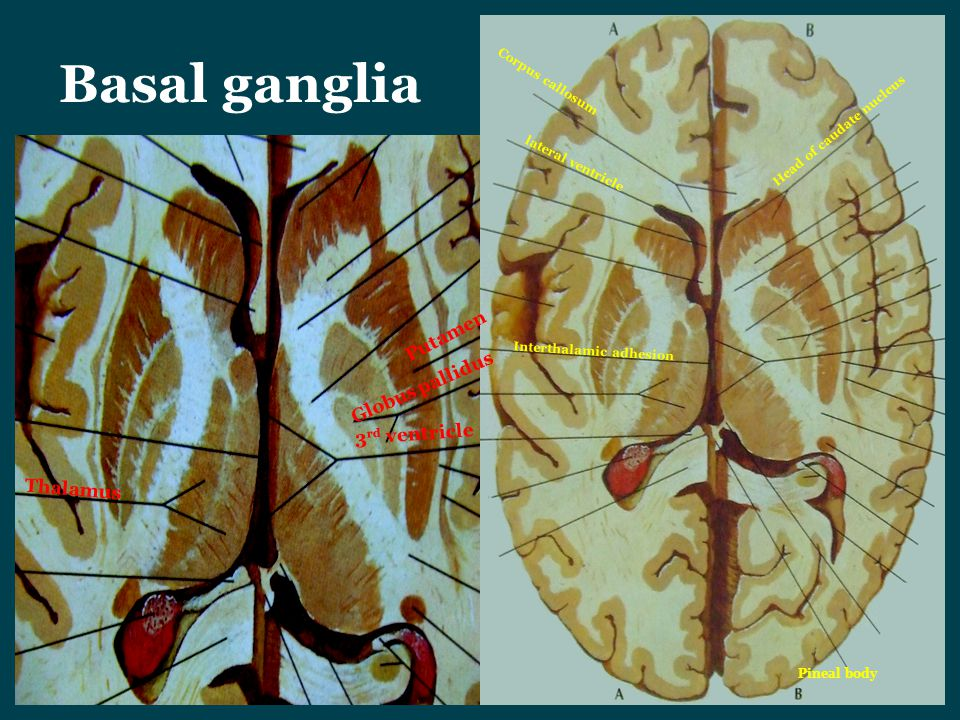 Basal ganglia Corpus callosum lateral ventricle Interthalamic adhesion Thalamus Putamen Globus pallidus 3 rd ventricle Pineal body Head of caudate nuc