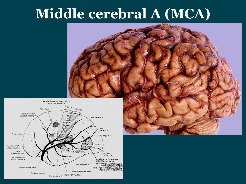 Middle cerebral A (MCA)