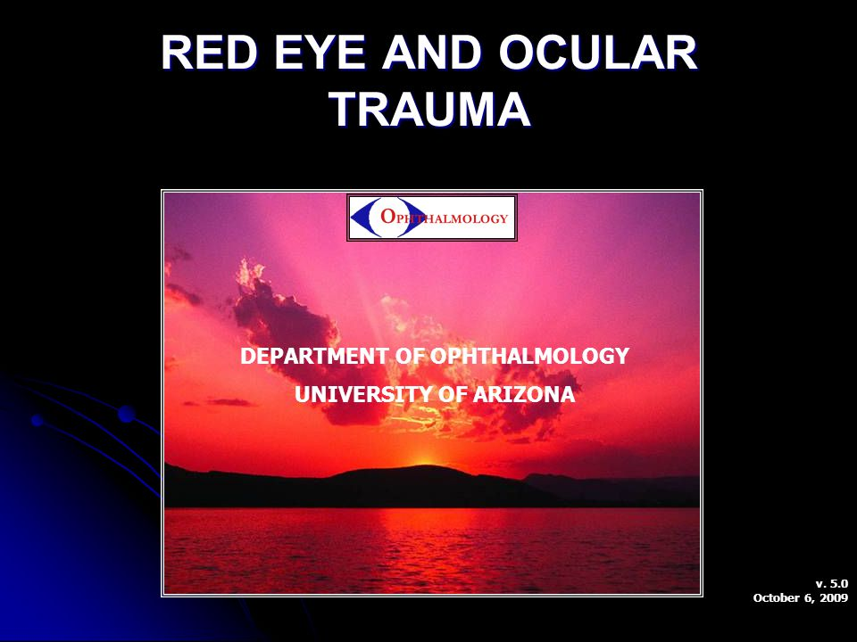 RED EYE AND OCULAR TRAUMA DEPARTMENT OF OPHTHALMOLOGY UNIVERSITY OF ARIZONA v. 5.0 October 6, 2009