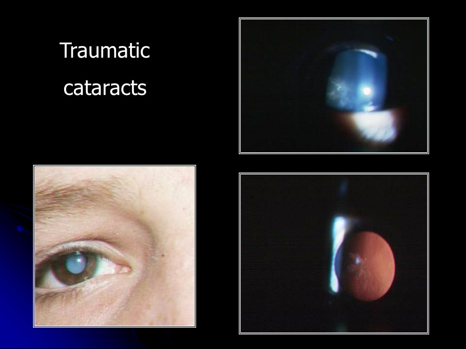 Traumatic cataracts