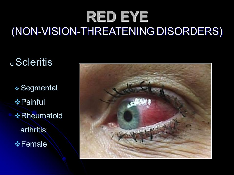 RED EYE (NON-VISION-THREATENING DISORDERS)  Scleritis  Segmental  Painful  Rheumatoid arthritis  Female
