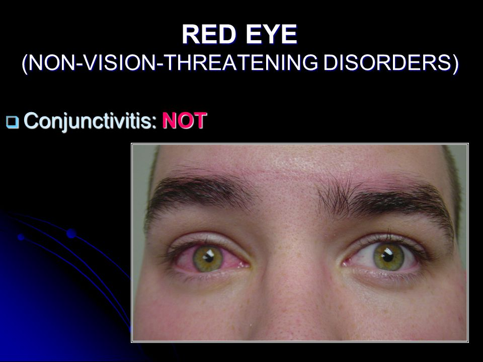 RED EYE (NON-VISION-THREATENING DISORDERS)  Conjunctivitis: NOT