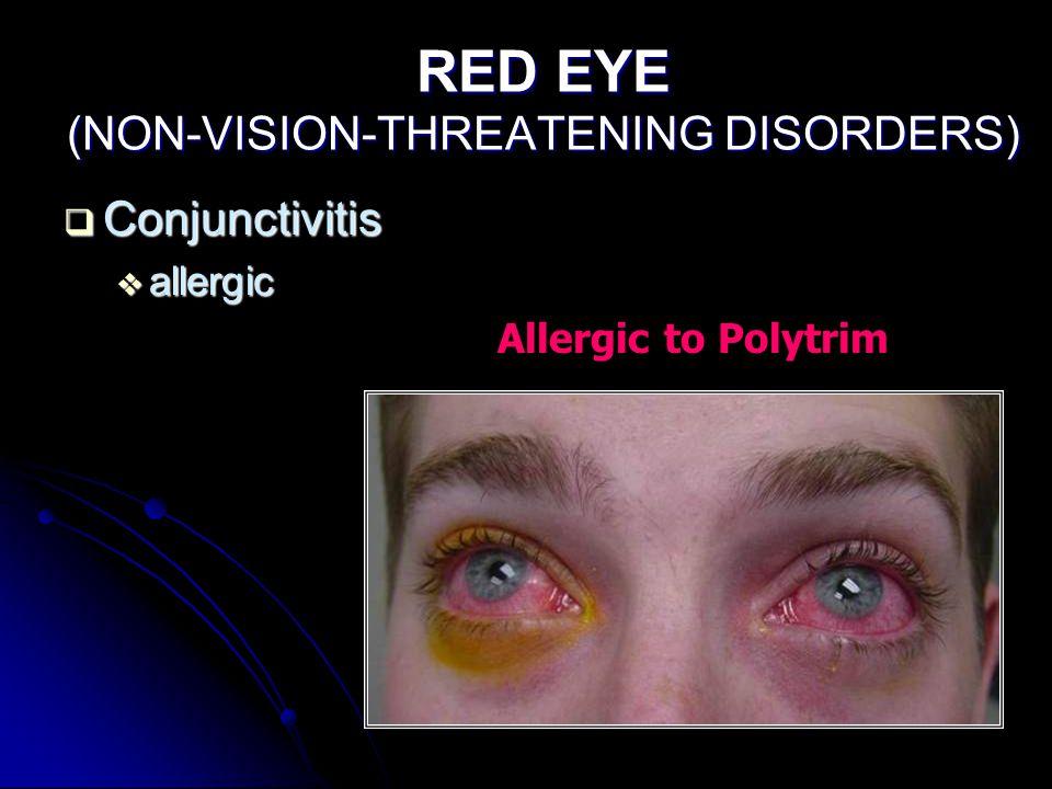 RED EYE (NON-VISION-THREATENING DISORDERS)  Conjunctivitis  allergic Allergic to Polytrim