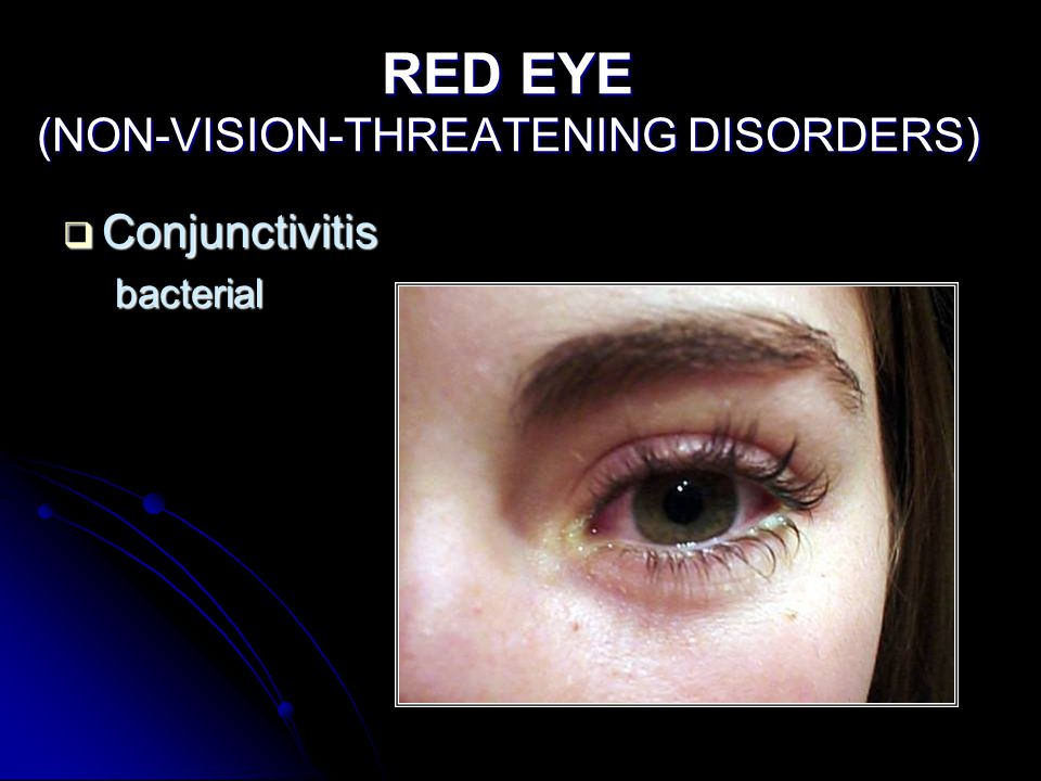 RED EYE (NON-VISION-THREATENING DISORDERS)  Conjunctivitis bacterial
