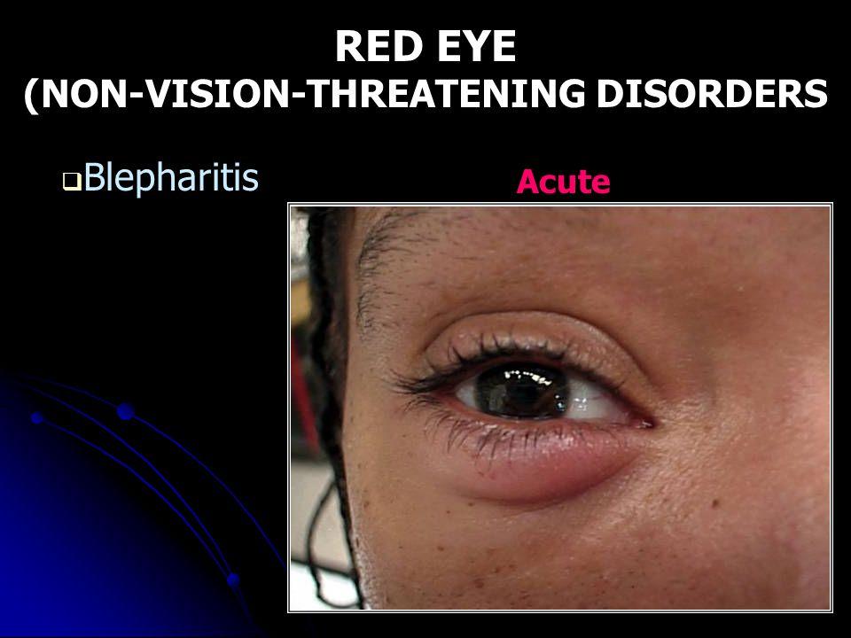 RED EYE (NON-VISION-THREATENING DISORDERS  Blepharitis Acute