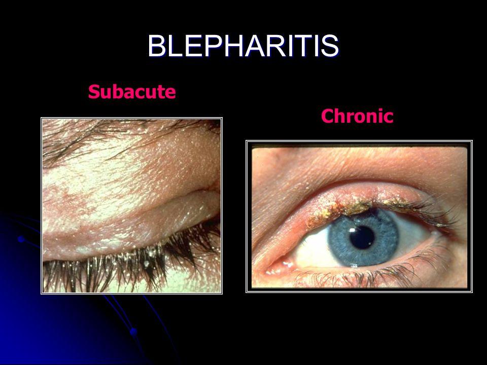 BLEPHARITIS Subacute Chronic