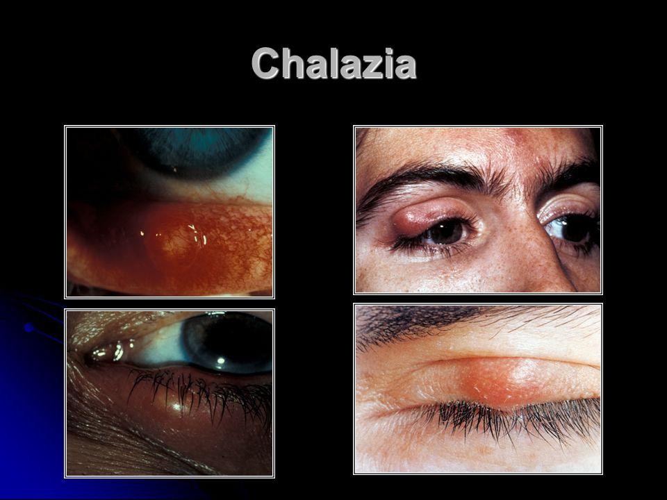 Chalazia