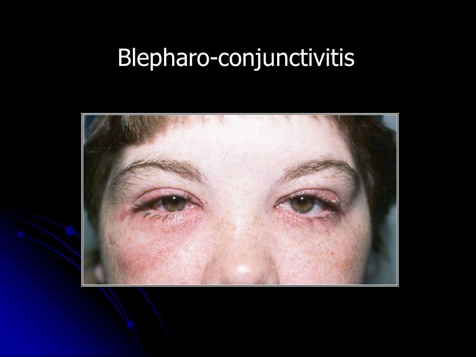 Blepharo-conjunctivitis