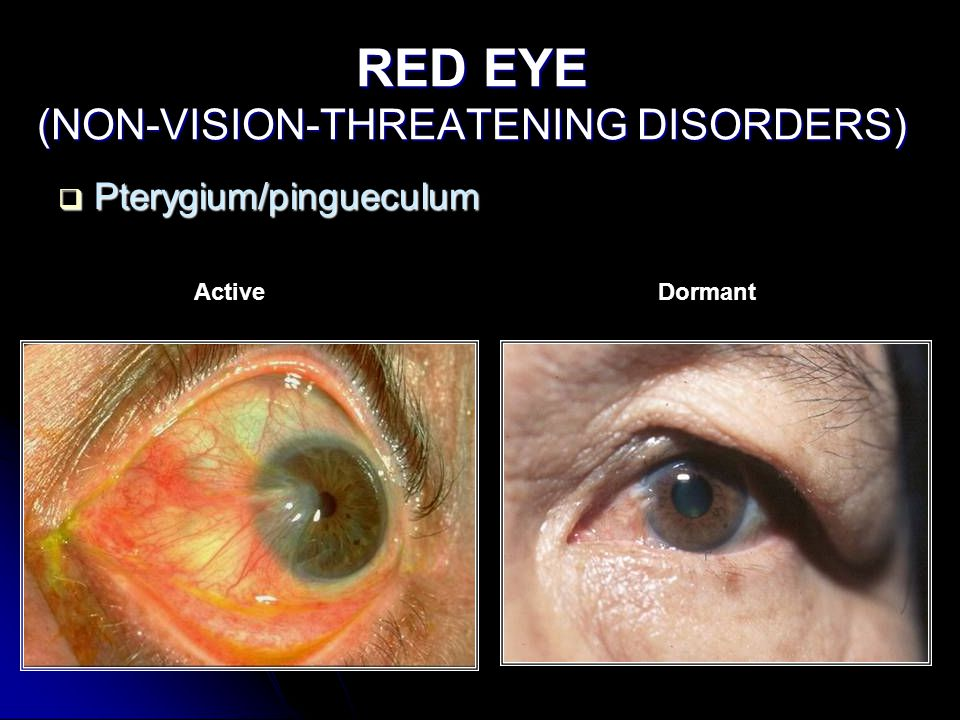 RED EYE (NON-VISION-THREATENING DISORDERS)  Pterygium/pingueculum ActiveDormant