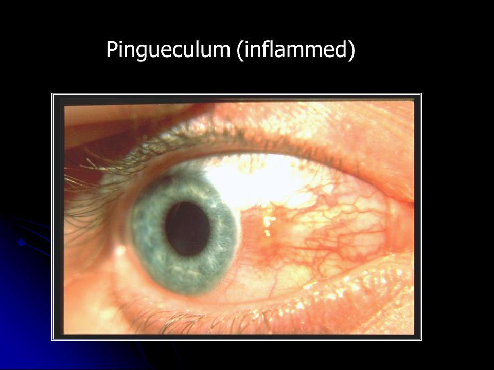 Pingueculum (inflammed)