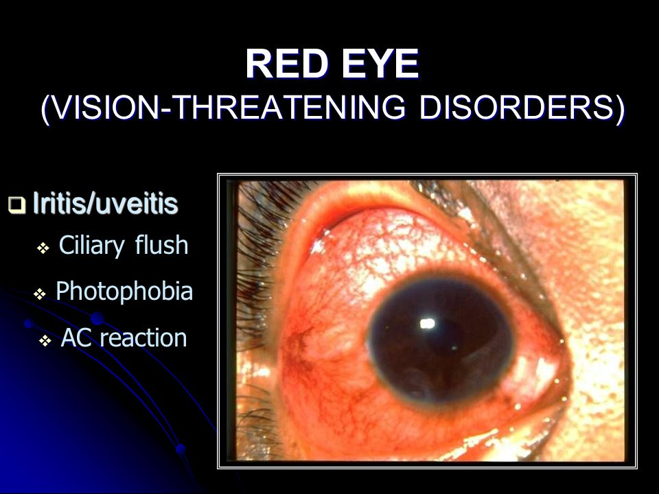 RED EYE (VISION-THREATENING DISORDERS)  Iritis/uveitis  Ciliary flush  Photophobia  AC reaction