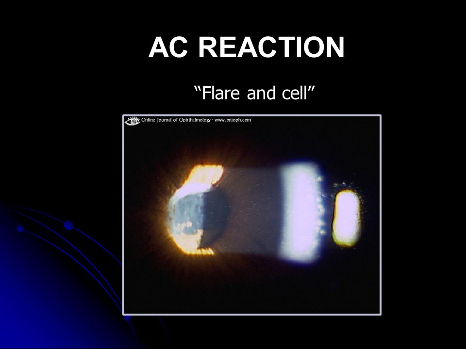 Flare and cell AC REACTION