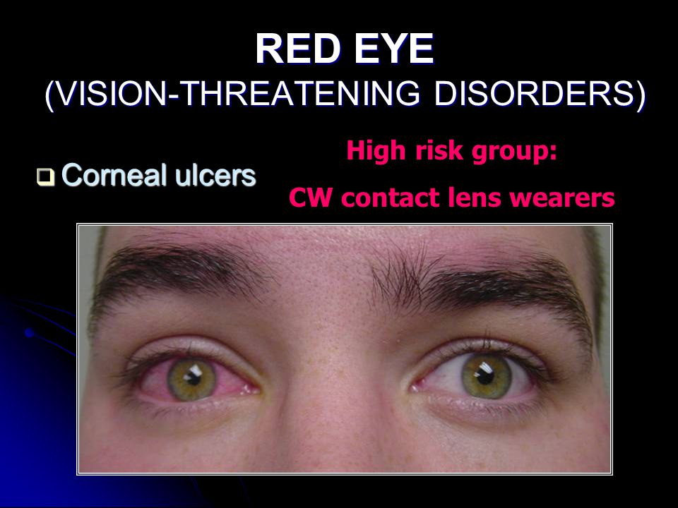 RED EYE (VISION-THREATENING DISORDERS)  Corneal ulcers High risk group: CW contact lens wearers