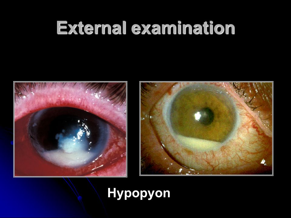 External examination Hypopyon