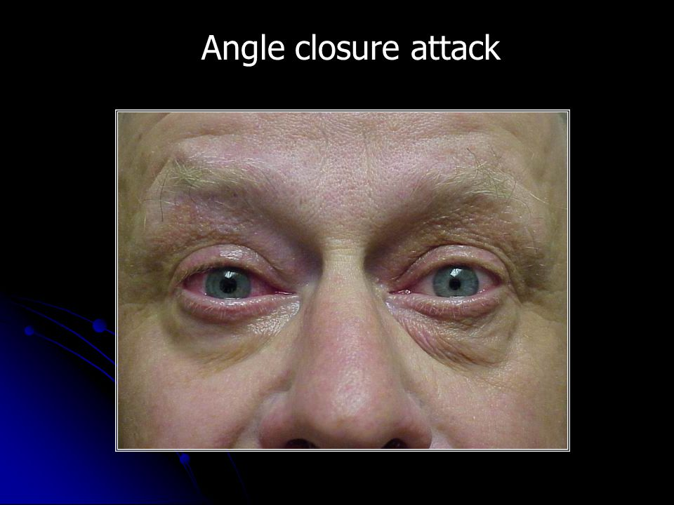 Angle closure attack