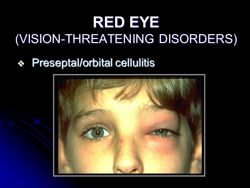 RED EYE (VISION-THREATENING DISORDERS)  Preseptal/orbital cellulitis