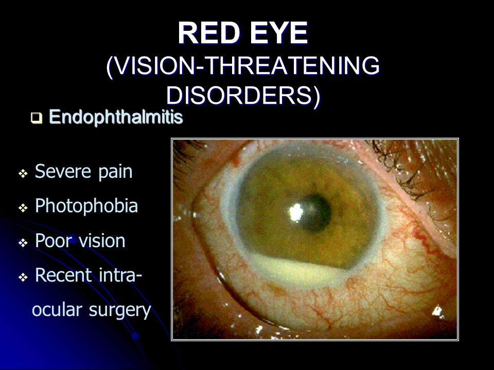 RED EYE (VISION-THREATENING DISORDERS)  Endophthalmitis  Severe pain  Photophobia  Poor vision  Recent intra- ocular surgery