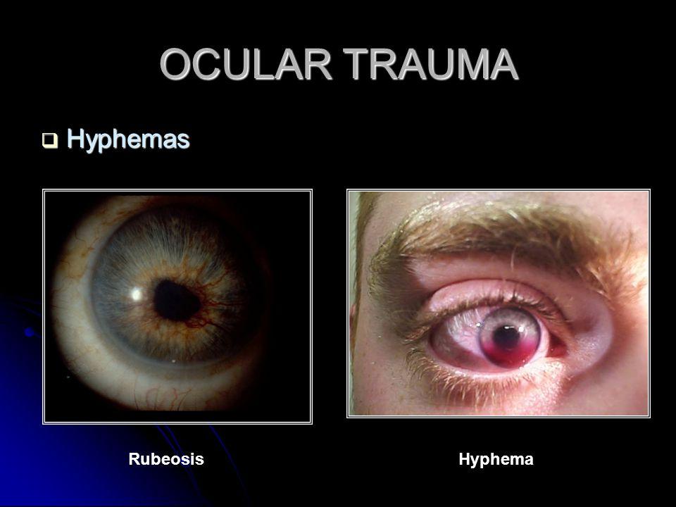 OCULAR TRAUMA  Hyphemas RubeosisHyphema