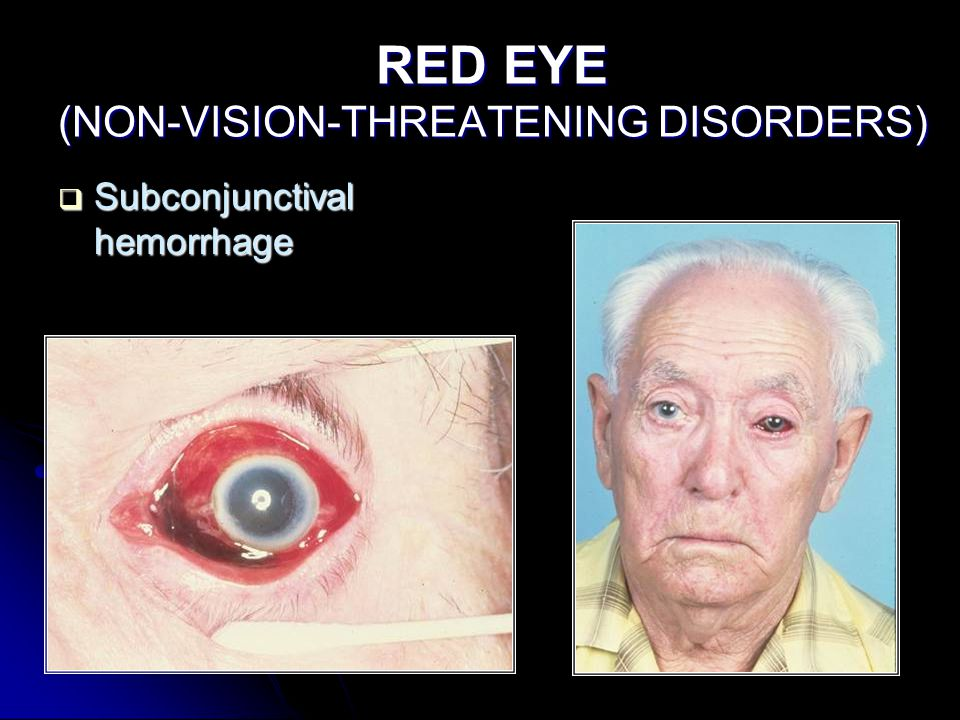 RED EYE (NON-VISION-THREATENING DISORDERS)  Subconjunctival hemorrhage