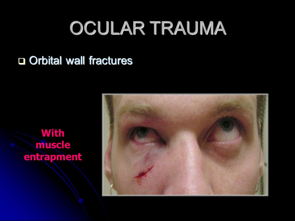 OCULAR TRAUMA  Orbital wall fractures With muscle entrapment