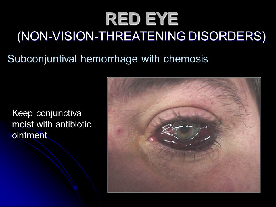 Subconjuntival hemorrhage with chemosis Keep conjunctiva moist with antibiotic ointment RED EYE (NON-VISION-THREATENING DISORDERS)