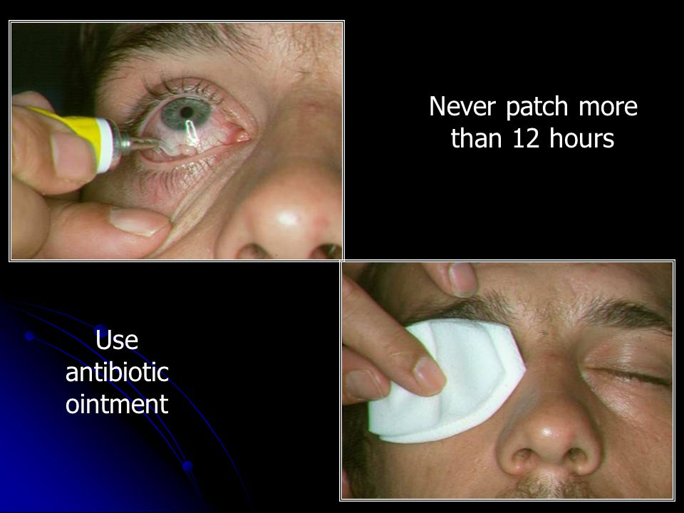 Never patch more than 12 hours Use antibiotic ointment