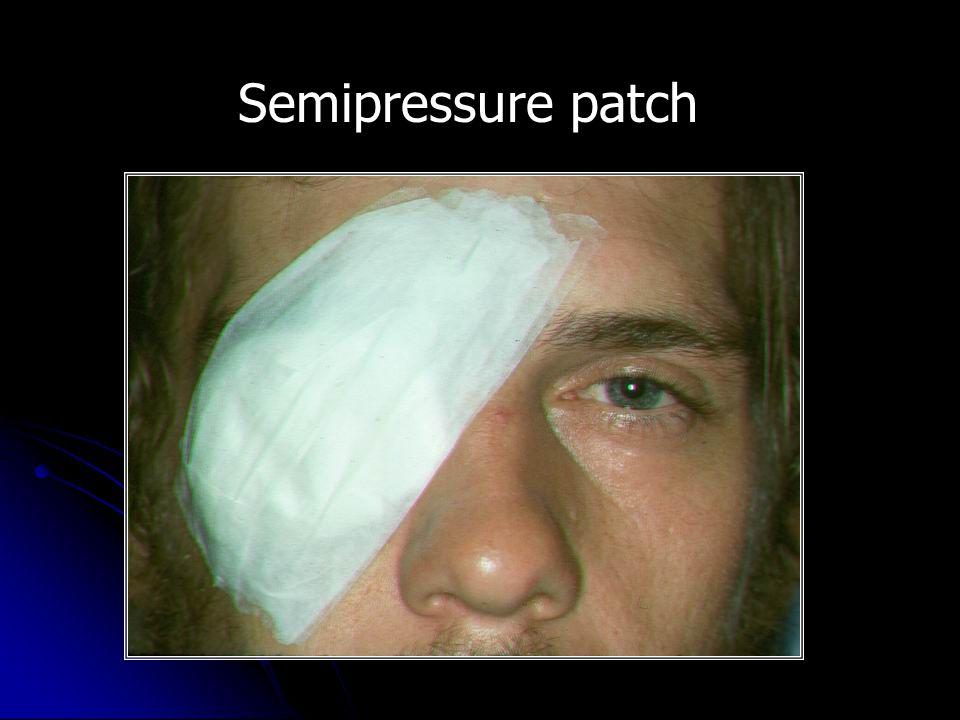 Semipressure patch