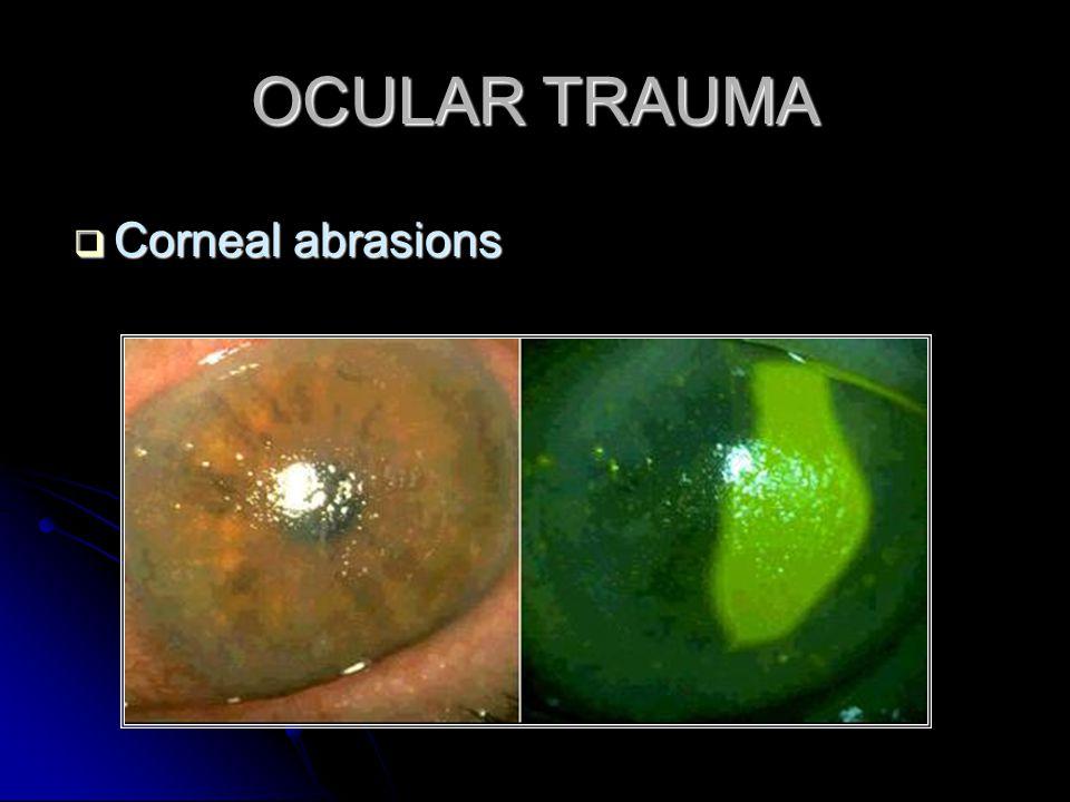 OCULAR TRAUMA  Corneal abrasions