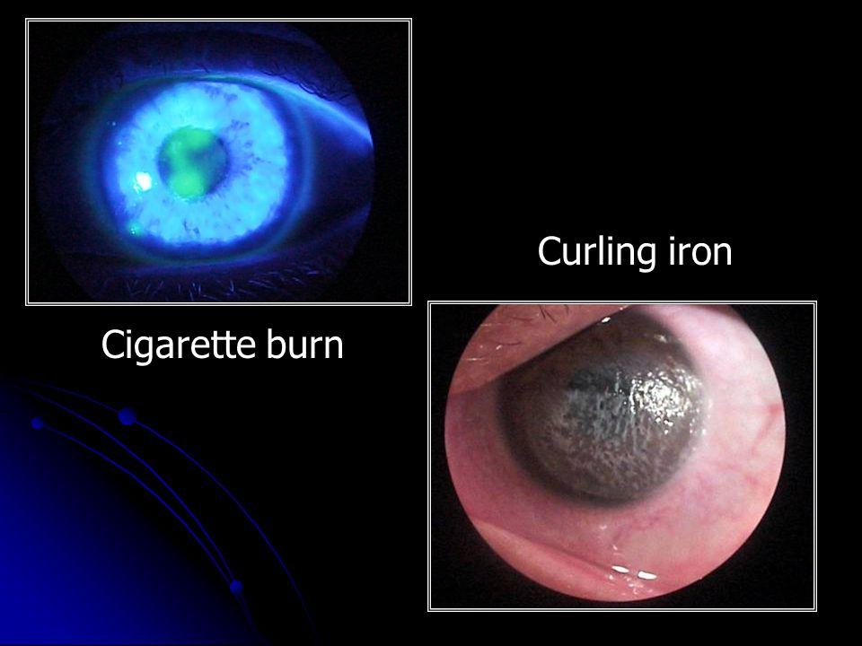 Curling iron Cigarette burn