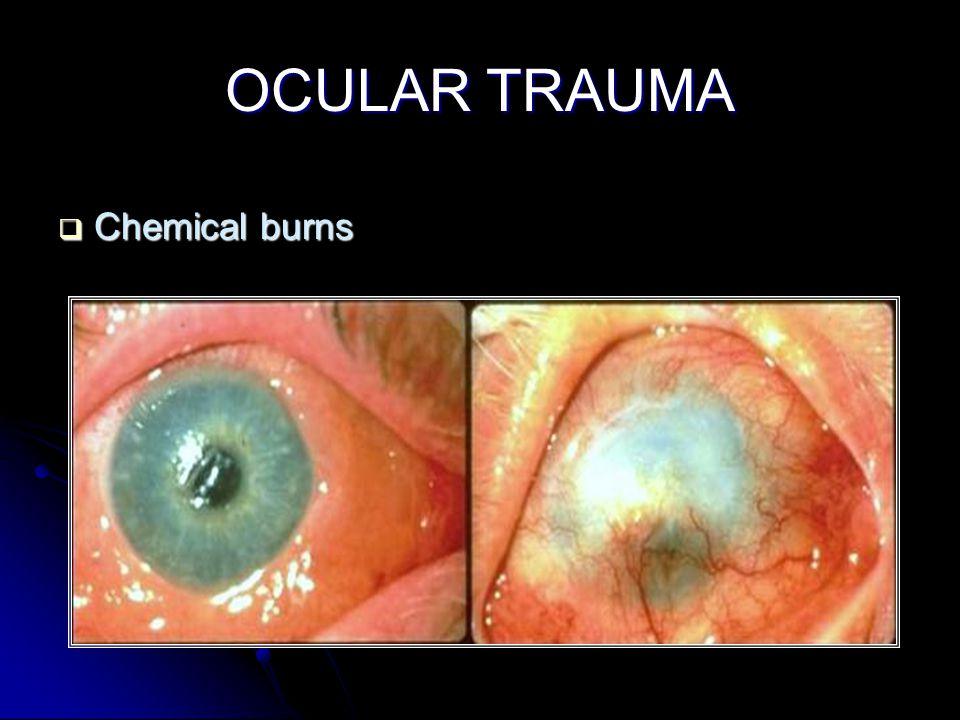 OCULAR TRAUMA  Chemical burns