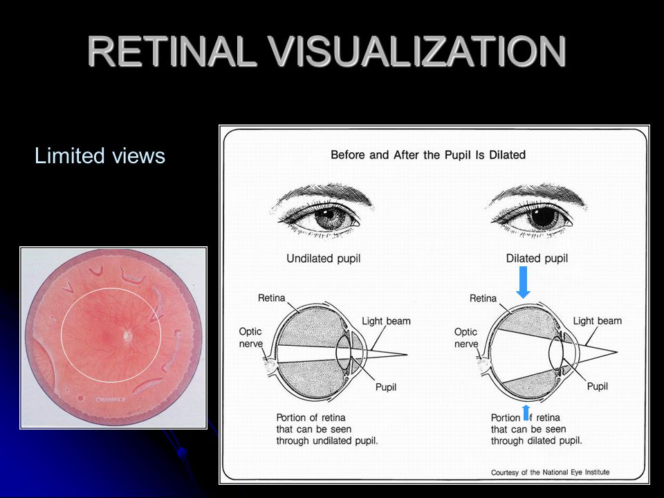 RETINAL VISUALIZATION Limited views