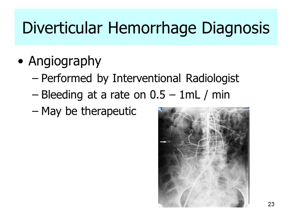 23 Diverticular Hemorrhage Diagnosis Angiography –Performed by Interventional Radiologist –Bleeding at a rate on 0.5 – 1mL / min –May be therapeutic