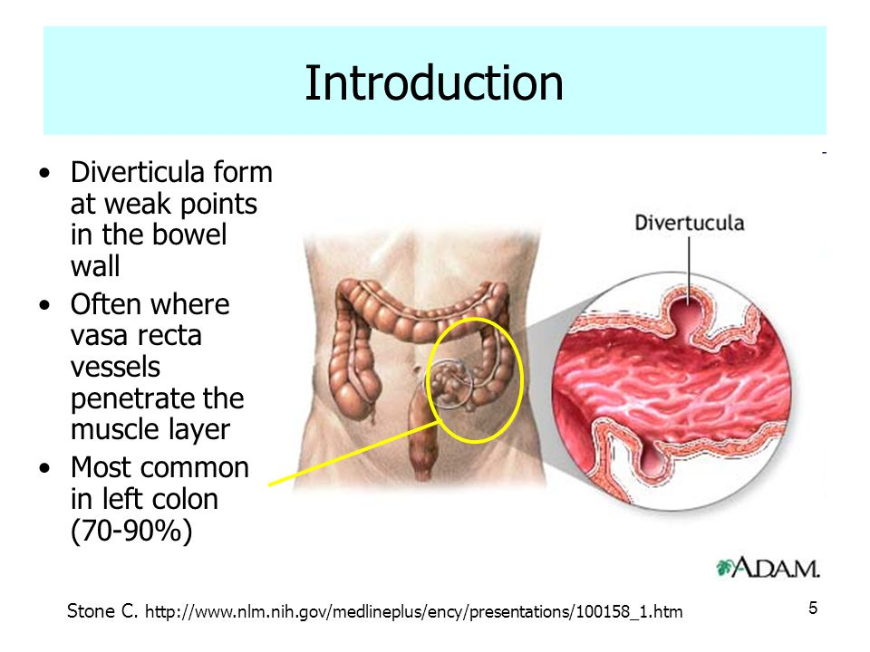 5 Introduction Diverticula form at weak points in the bowel wall Often where vasa recta vessels penetrate the muscle layer Most common in left colon (