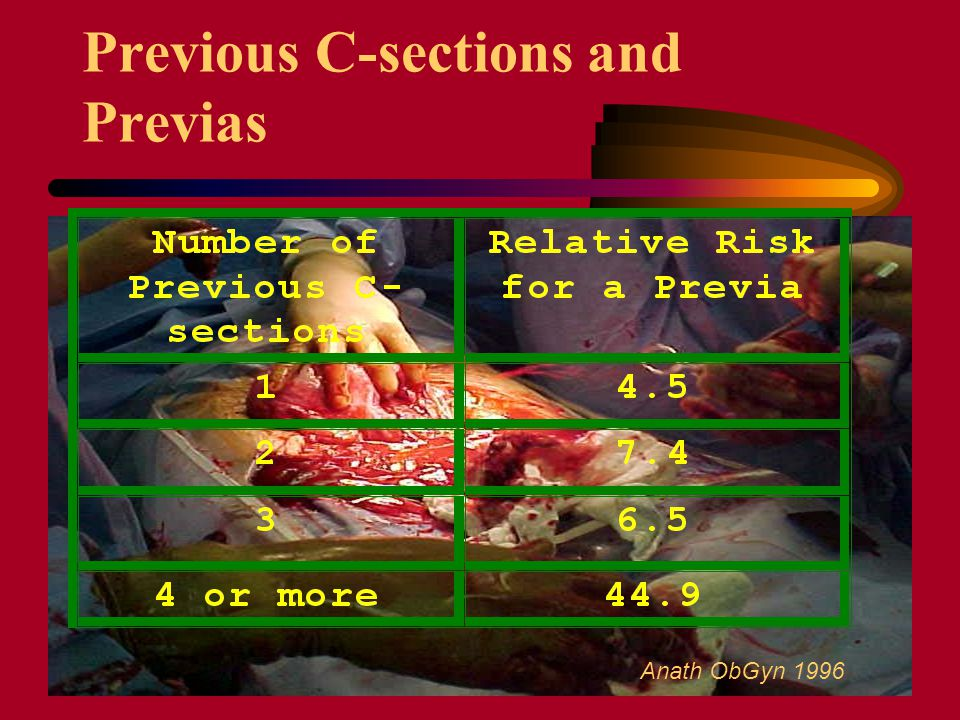 Previous C-sections and Previas Anath ObGyn 1996