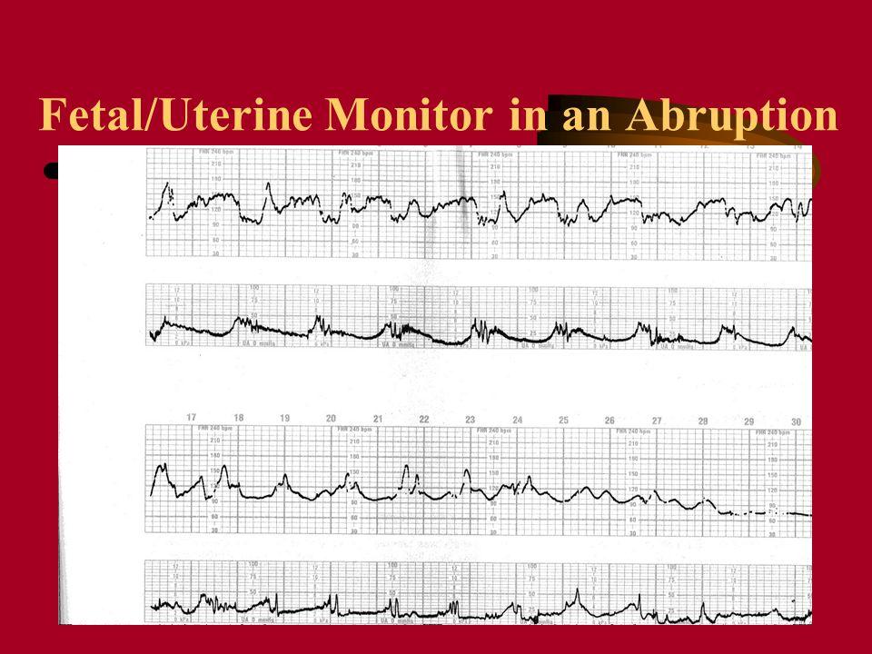 Fetal/Uterine Monitor in an Abruption