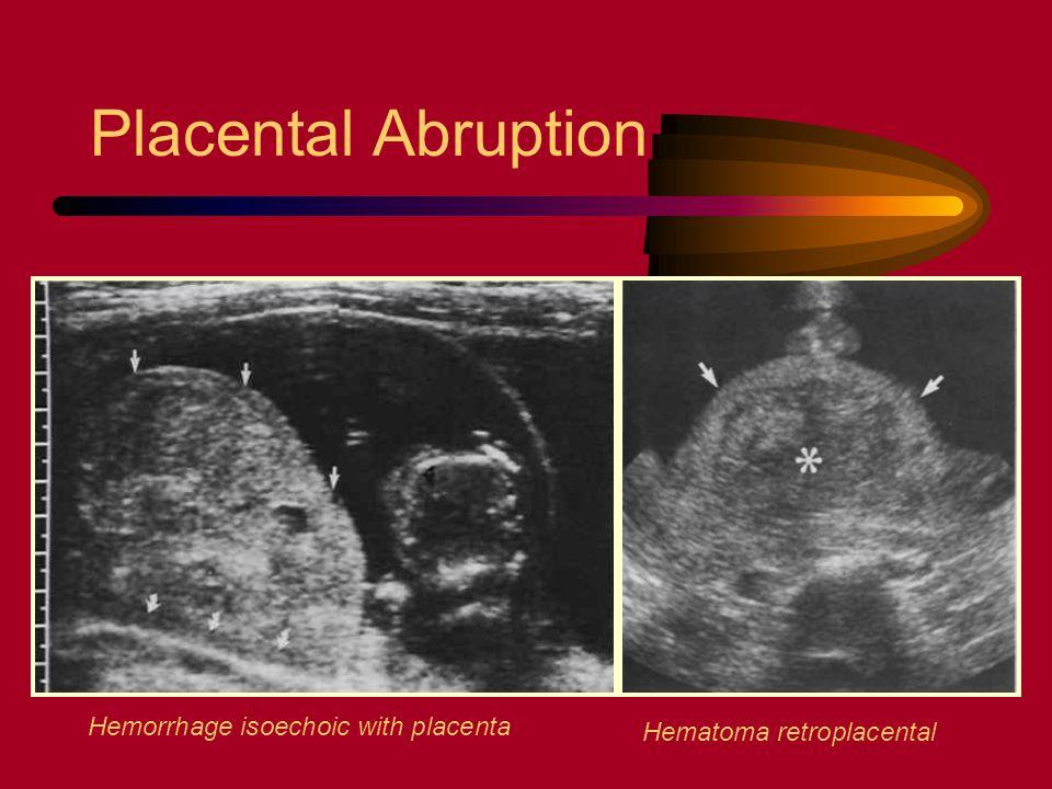 Placental Abruption Hemorrhage isoechoic with placenta Hematoma retroplacental