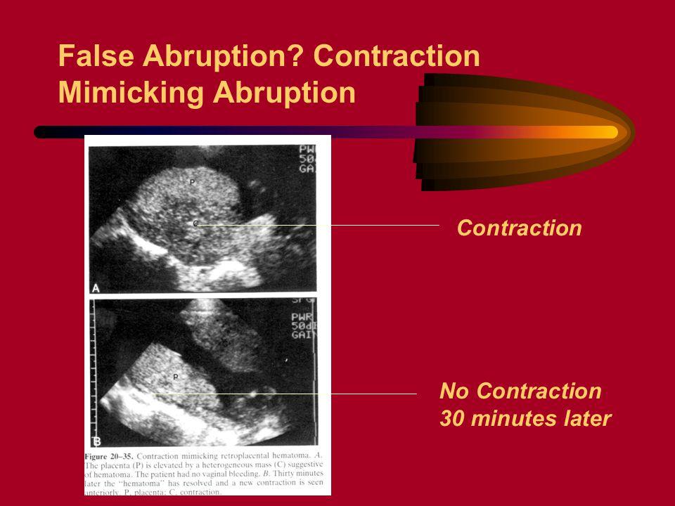 False Abruption? Contraction Mimicking Abruption Contraction No Contraction 30 minutes later