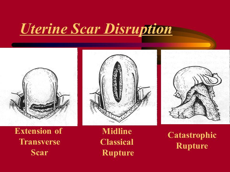 Extension of Transverse Scar Midline Classical Rupture Catastrophic Rupture Uterine Scar Disruption