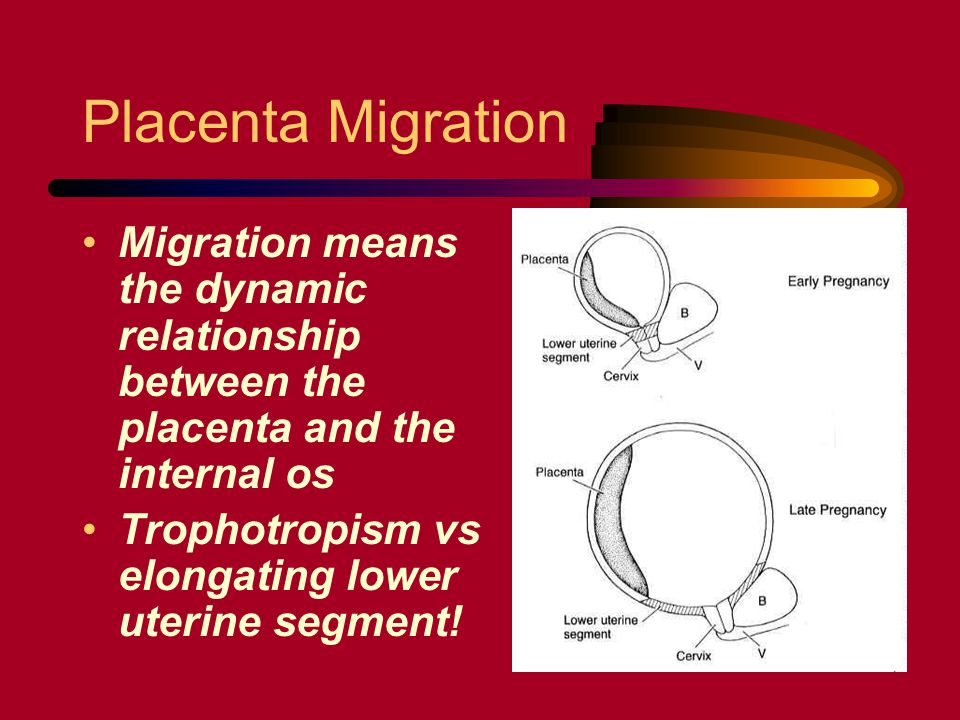 Placenta Migration Migration means the dynamic relationship between the placenta and the internal os Trophotropism vs elongating lower uterine segment