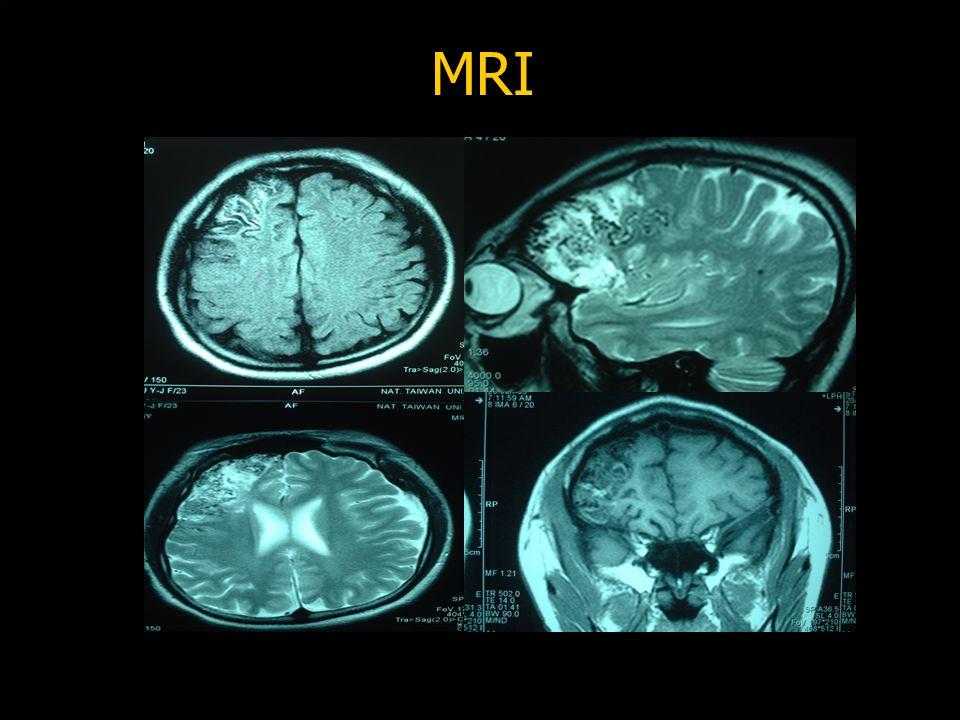 MRI MRI