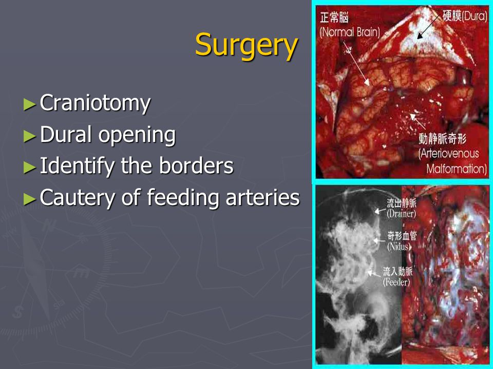 Surgery ► Craniotomy ► Dural opening ► Identify the borders ► Cautery of feeding arteries