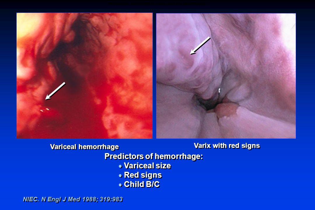 Predictors of hemorrhage:  Variceal size  Red signs  Child B/C Predictors of hemorrhage:  Variceal size  Red signs  Child B/C NIEC. N Engl J Med