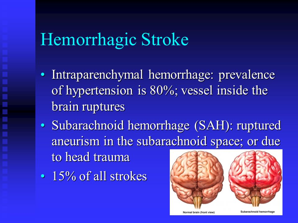 Hemorrhagic Stroke Intraparenchymal hemorrhage: prevalence of hypertension is 80%; vessel inside the brain rupturesIntraparenchymal hemorrhage: prevalence of hypertension is 80%; vessel inside the brain ruptures Subarachnoid hemorrhage (SAH): ruptured aneurism in the subarachnoid space; or due to head traumaSubarachnoid hemorrhage (SAH): ruptured aneurism in the subarachnoid space; or due to head trauma 15% of all strokes15% of all strokes