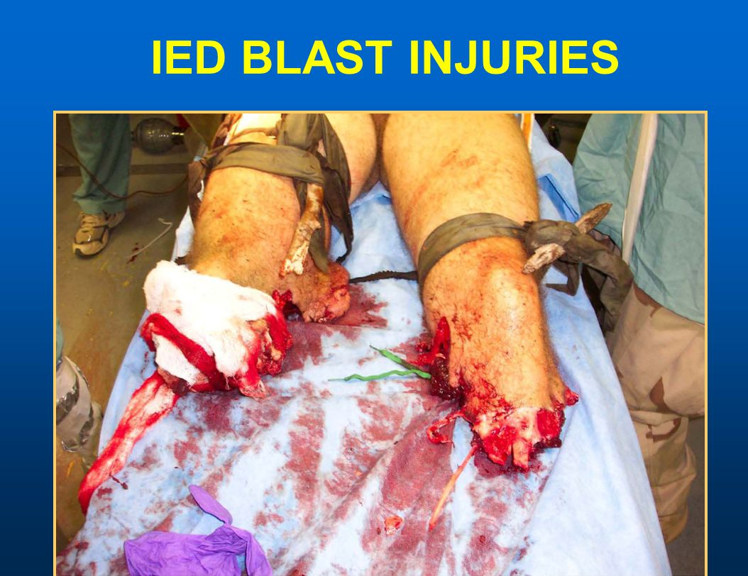 IED BLAST INJURIES