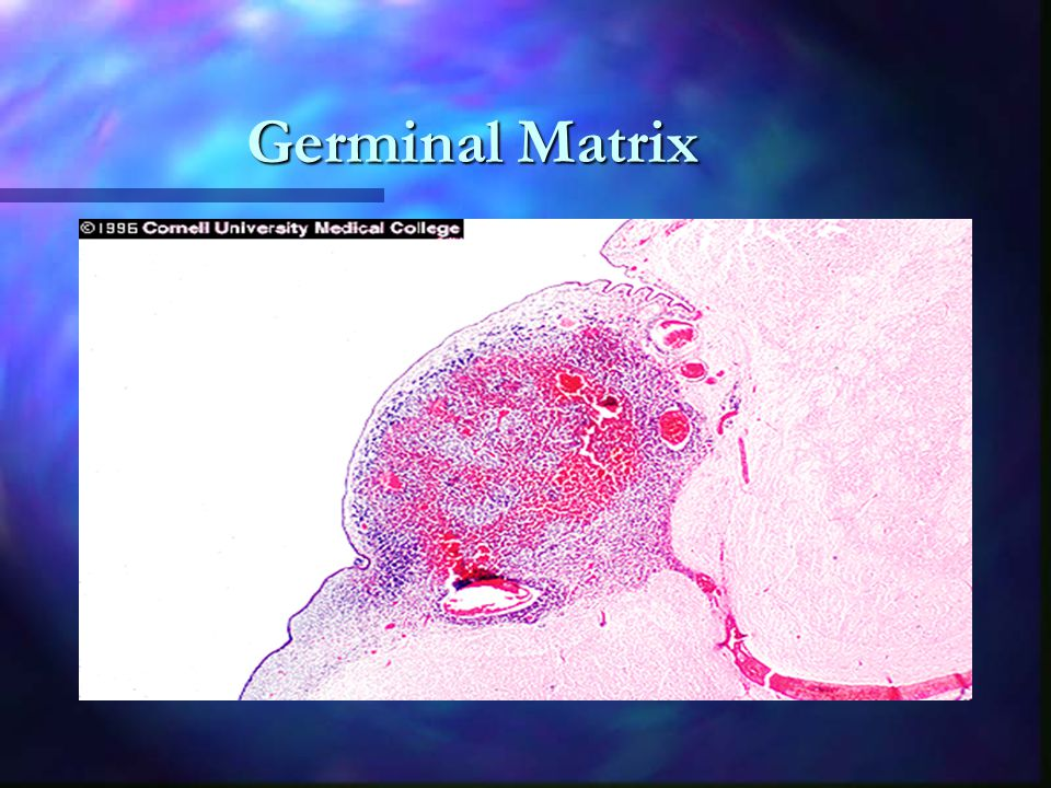 Germinal Matrix